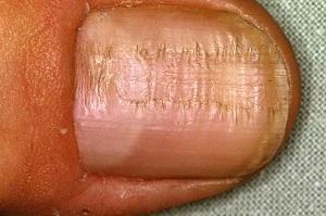 Fingernagel Diagnose Bilder